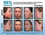 Neutralyze Moderate To Severe Acne Treatment Kit (30 Day) - Maximum Strength 3-Step Anti Acne Medication With Salicylic Acid + Mandelic Acid + Nitrogen Boost Skincare Technology