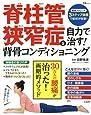 脊柱管狭窄症を自力で治す! 背骨コンディショニング (TJMOOK)