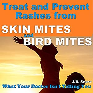 Treat and Prevent Rashes from Skin Mites and Bird Mites Audiobook