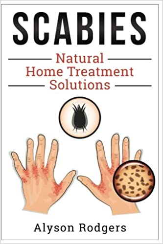 scabies natural home treatment solution alyson rodgers