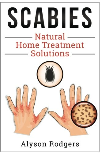 Scabies Natural Home Treatment Solution ebook