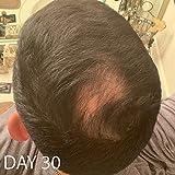 Biotin Vitamin Hair Growth