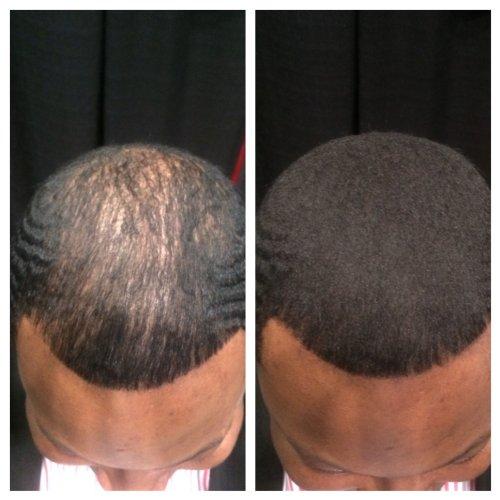 Hair Illusion Premium Hair Loss Concealer for Men \u0026 Women