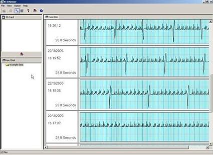 Omron corazón Scan Expansion Pack (sin Software de ECG Monitor, sólo el programa)