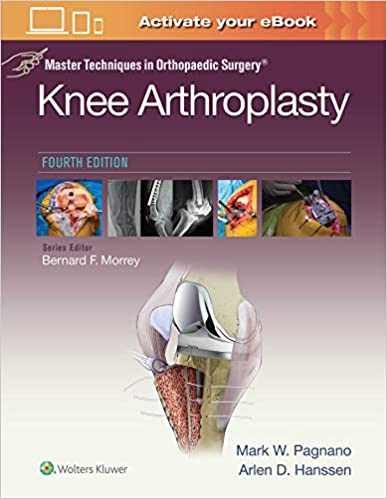 Master Techniques in Orthopedic Surgery: Knee Arthroplasty (Master