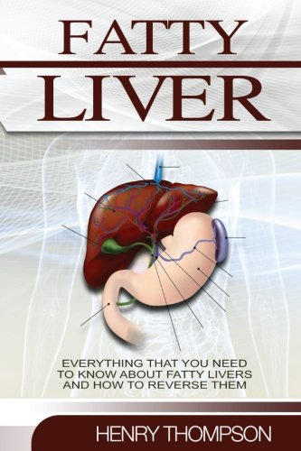 Liver+health Products : Fatty Liver: The Ultimate Step-by-Step Guide To Understanding and Reversing Fatty Liver Disease (Liver Cleanse, Nutrition, Liver Cleanse, Healthy Living, Revitalise Health, Detox Body, Weight)