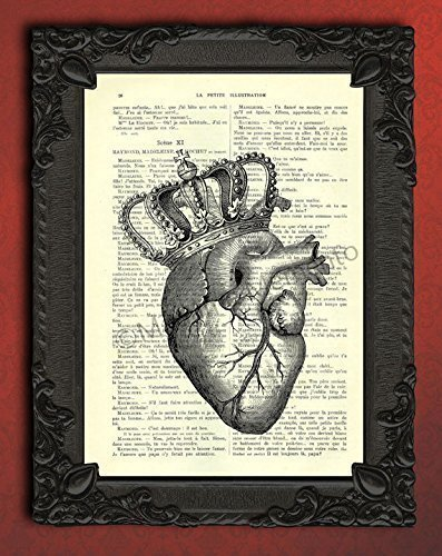 (Royal heart crown wall art print, human anatomical poster in black and white, anatomy decor )
