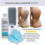 8oz Callus Remover Gel and Foot File/Foot Rasp