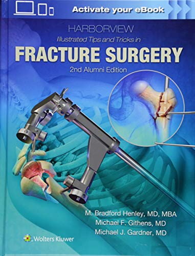 (Harborview Illustrated Tips and Tricks in Fracture Surgery)