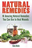Natural Remedies: 18 Amazing Natural Remedies You Can Use to Heal Wounds