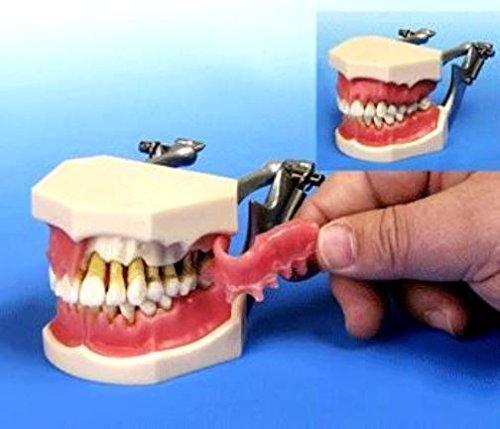Periodontal Diseases Demonstration Model Upper Lower Jaws