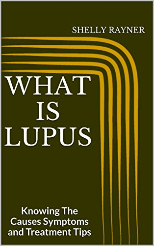 What Is Lupus: Knowing The Causes Symptoms and Treatment Tips