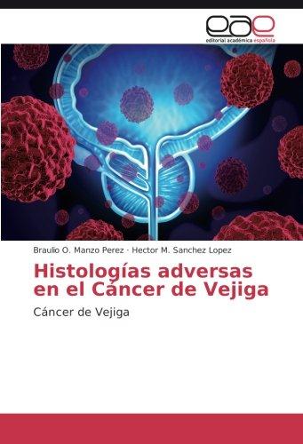 Histologías adversas en el Cáncer de Vejiga: Cáncer de Vejiga (Spanish Edition)