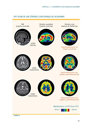 Doença de Alzheimer. Guia Completo