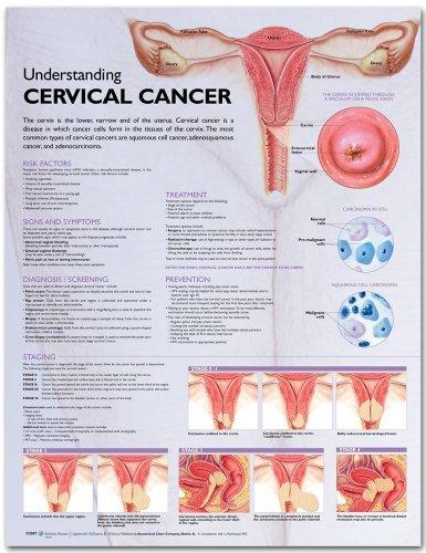 Understanding Cervical Cancer Anatomical Chart ()