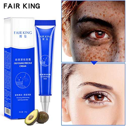 YTGOOD Dark Spot Corrector Remover For Face & Melasma Treatment Fade Cream,Soft Nourish Skin Firming Whitening Freckle Curing Cream Blemish Removal Serum Reduces Age Spots Freckles Melasma Face Cream