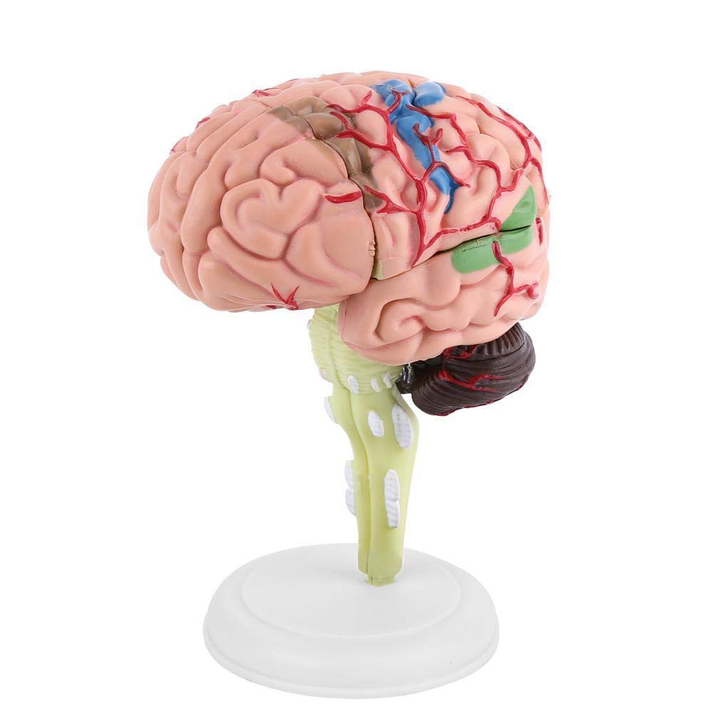 Disassembled Human Brain Model Structural Anatomy Medical Teaching Learning Tool