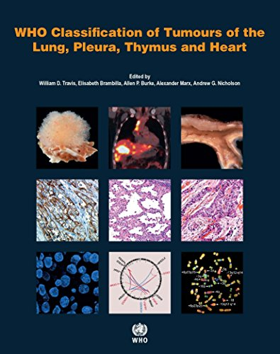 WHO Classification of Tumours of the Lung, Pleura, Thymus and Heart (Medicine)