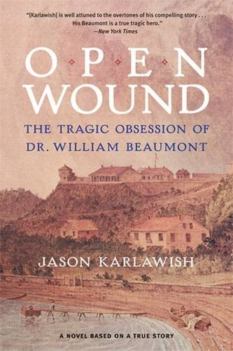 Open Wound Obsession William Beaumont product image