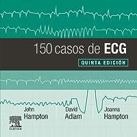 150 casos de ECG (5ª ed.)