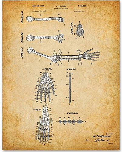 Hand and Arm Bones - 11x14 Unframed Art Print - Great Gift for Medical and Nursing Students