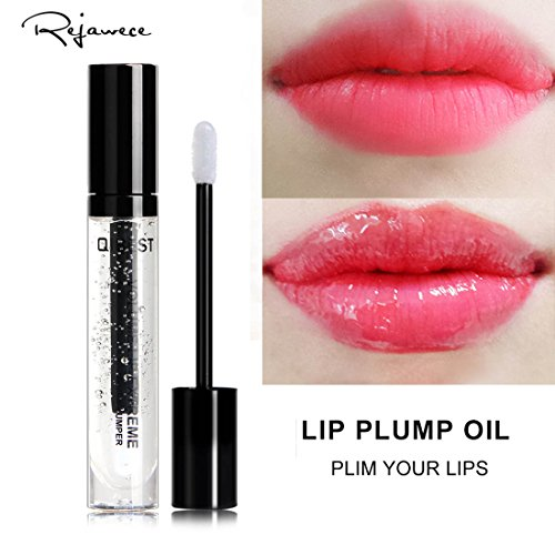 Treatment For Vertical Lip Lines - 5