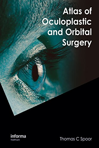 Download Atlas of Oculoplastic and Orbital Surgery Pdf