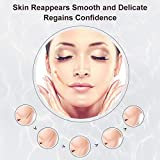 Scar Cream, Stretch Mark Cream, Acne Scar Removal