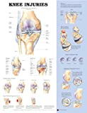 Knee Injuries, Anatomical Chart Company Staff, 1587798913