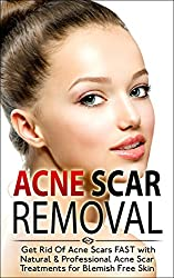 Acne Scar Removal: Get Rid of Acne Scars FAST with Natural & Professional Acne Scar Treatments for Blemish Free Skin (Acne Solution, Acne No More) (English Edition)