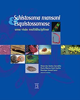 schistosomiasis o esquistosomiasis)