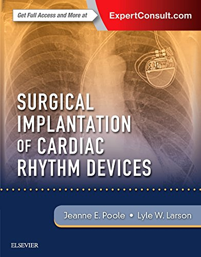 Surgical Implantation of Cardiac Rhythm Devices by Elsevier