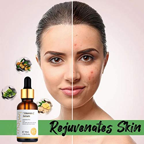 51MynY1beEL - kitt Facial Vitamin Serum 30ml, Dark Spots Corrective Moisturizing Firming Repair Scar Facial Serum - Anti-Aging, Whiten, Brighten Skin (Multicolor)