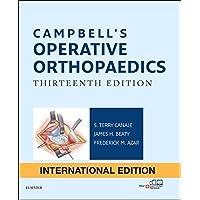 Campbell's Operative Orthopaedics: 4-Volume Set, International Edition