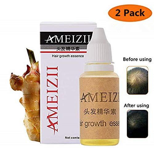 Hair Growth Serum,2019 Hair Regrowth Treatment, Hair Serum,Hair Growth Oil, Hair Growth Essence, Hair Loss Treatments, Prevent Hair Loss, Thinning Hair for Women Men (Pack of 2)