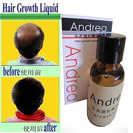 lesempera (TM) 2Bottle * 20ml de crecimiento del cabello pelo Tratamiento Rápido Crecimiento del