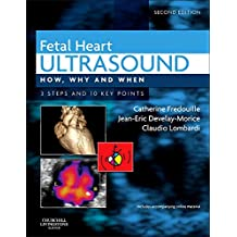 Fetal Heart Ultrasound: How, Why and When
