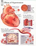 Effects of Hypertension chart: Laminated Wall Chart