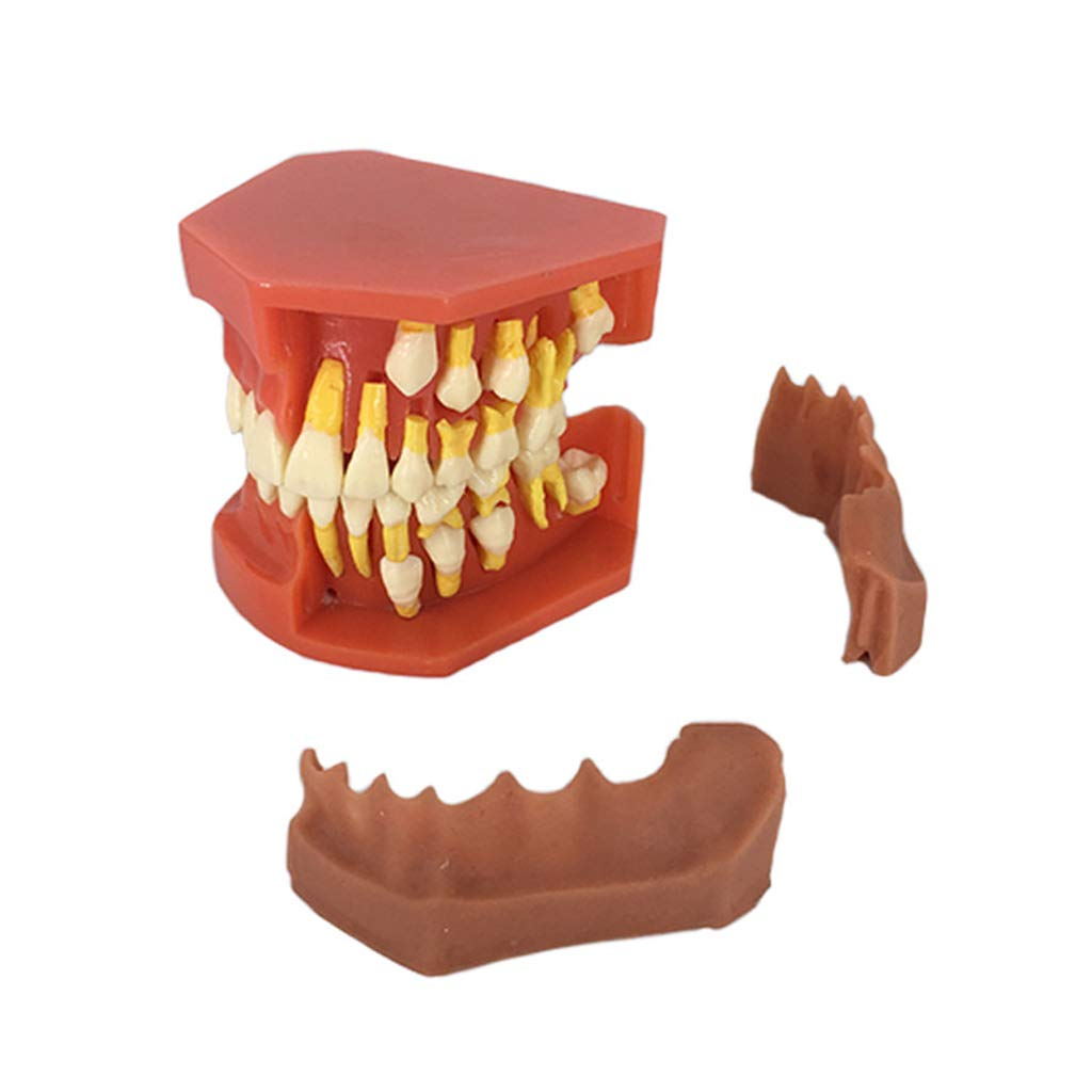 Huilier Dental Children Removable Deciduous Teeth Model Permanent Tooth Alternative Display Studying Teaching Tool