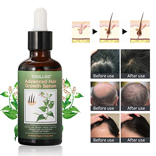Hair Growth Serum, Hair Loss Treatments, Hair Serum, Hair Growth Oil for Thicker Longer Fuller Healthier Hair, Help Hair Follicle Growth, Prevent Hair Loss & Thinning, With Natural Vitamin Rich Treatm