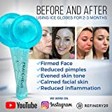 FRAÎCHEUR ICE GLOBES | Frozen Cryo Roller for Cold Facial Massage | Skincare Cooling Glass Massager with Anti-Freeze Liquid Inside | Reduce Puffiness, Pores and | Bonus Massage Techniques eBook