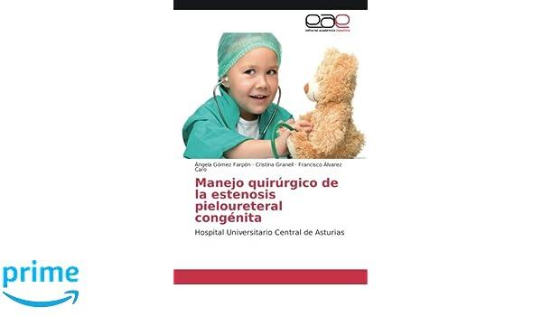 Manejo quirúrgico de la estenosis pieloureteral congénita: Hospital Universitario Central de Asturias (Spanish Edition): Ángela Gómez Farpón, ...