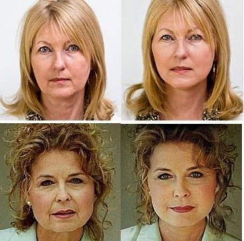 NEW INSTANT FACELIFT AND NECKLIFT FACE NECK LIFT KIT TAPES ANTI AGEING  STRIPS By Emmy Award winning makeup artist Art Harding ( (Light Hair Kit)