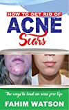 HOW TO GET RID OF ACNE  SCARS: The ways To Lead An Acne  Free Life