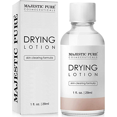 Majestic Pure Acne Drying Lotion Acne and Pimples Skin Care Formula 1 fl oz