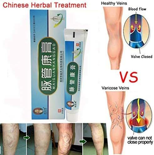 Medical Varicose Veins Treatment Leg Acid Bilges Itching Earthworm Lumps Cream by Rubyshop