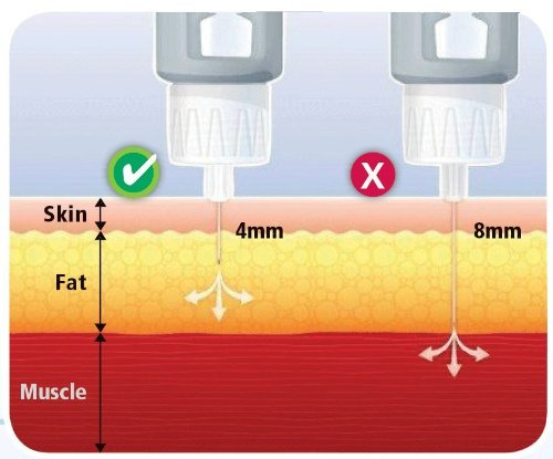 Clever-Choice-Comfort-EZ-Insulin-Pen-Needles-31G-6mm-14-3-pack-300-needles