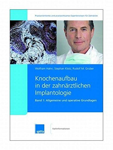 knochenaufbau-in-der-zahnrztlichen-implantologie-2007-2008-band-1-2-knochenaufbau-in-der-zahnrztlichen-implantologie-band-1-allgemeine-und-operative-grundlagen