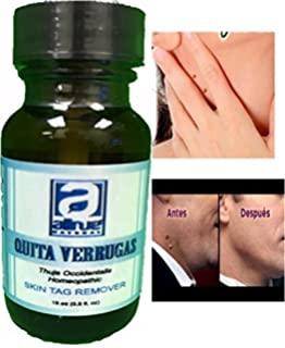 quita verruga Skin Tag Away Wart Remover Sani Skin Skimaway Skim Away Dermanacstrenght Adios a Las