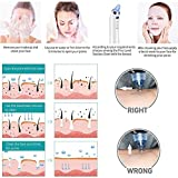 Blackhead Remover Vacuum Suction Pore Cleaner
